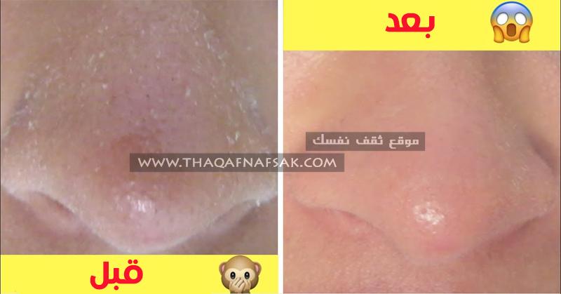 أجرة الاستمارة غير نشط جفاف ابوجه بعد استخدام منظف الوجه Comertinsaat Com