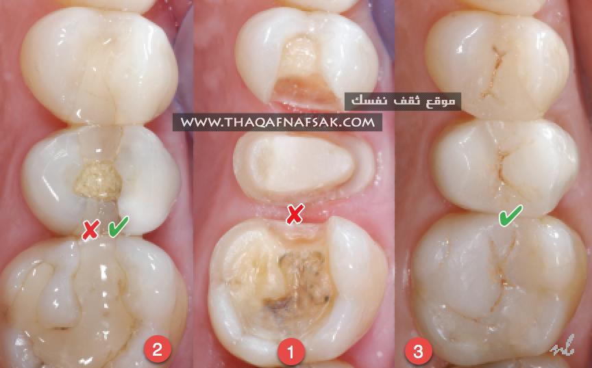 تقوية الأسنان بـ ٣١ طريقه تجعلها متينه ولا تضعف أبدا ثقف نفسك