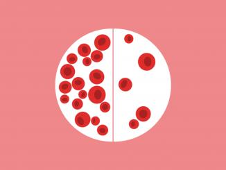 فقر الدم والدورة الشهرية