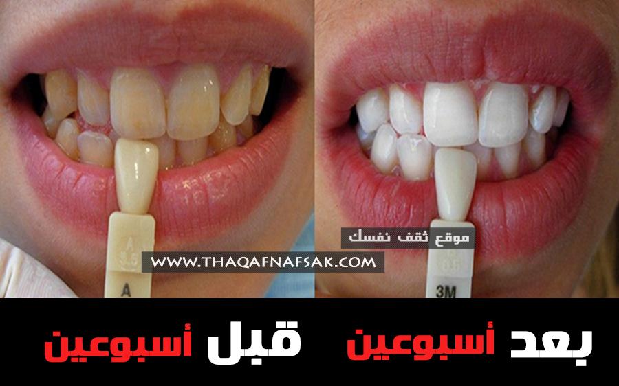 تبييض الأسنان