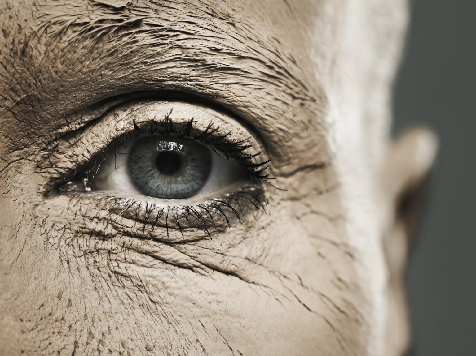 e781b353d أسباب جفاف الجلد حول منطقة العين