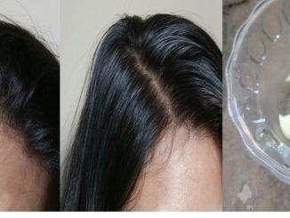 الثوم لنمو الشعر