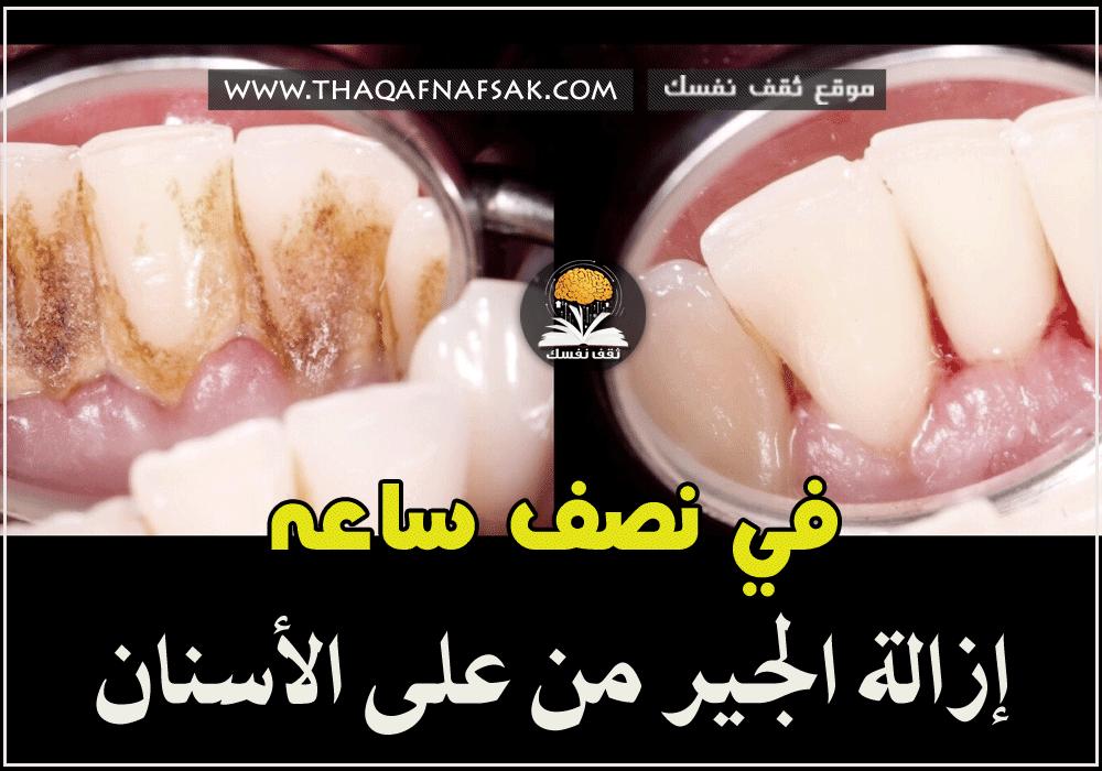 إزالة جير الأسنان