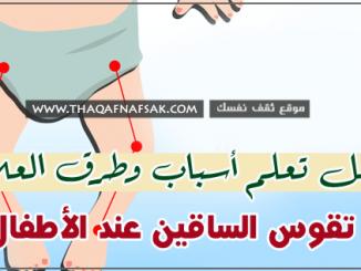 تقوس الساقين عند الأطفال