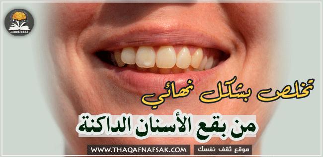 التخلص من البقع البنية علي الاسنان