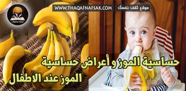 حساسية الموز
