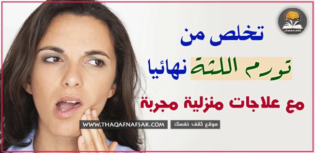 علاجات-منزلية-لعلاج-تورم-اللثة