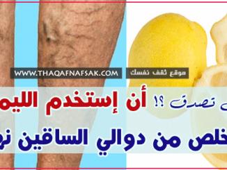 علاج دوالي الساق