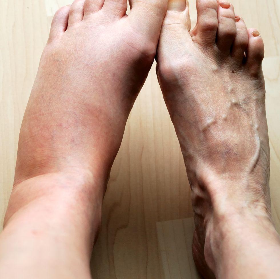اسباب تورم القدمين عند الرجال