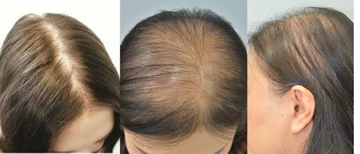 نقص الحديد و تساقط الشعر