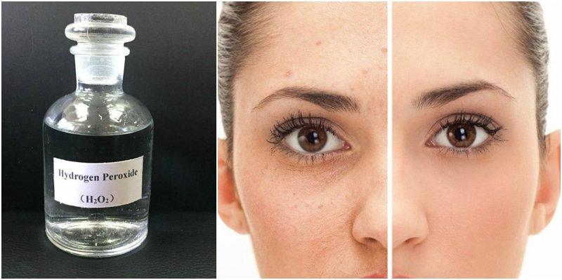 ماء الأكسجين لعلاج حب الشباب