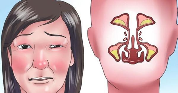 علاج انسداد الأنف