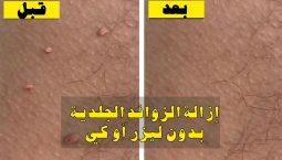 علاج الزوائد الجلدية
