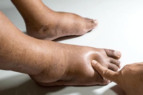 علاج انتفاخ القدمين و الساقين