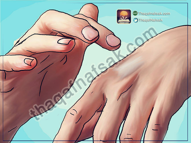670px-Get-Rid-of-a-Mosquito-Bite-Step-3-Version-2