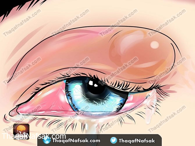دمل جفن العين