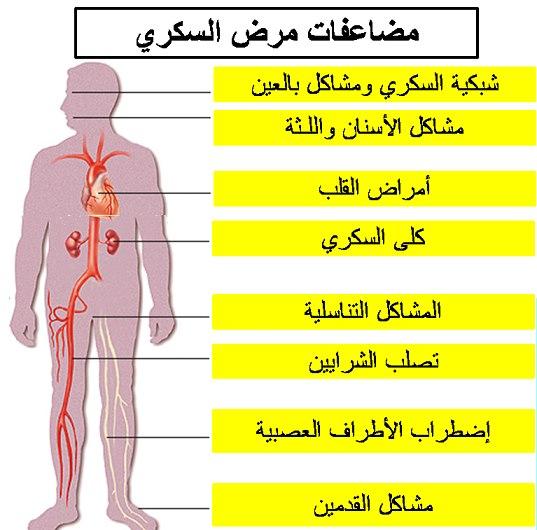 48a693890 كل ما تريد معرفته عن مرض السكرى ..عوامل الخطورة و الأعراض و كيفية ...